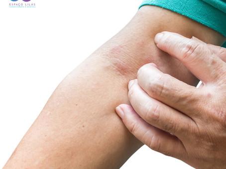 Dermatite atópica: como funciona a ozonioterapia para doenças de pele
