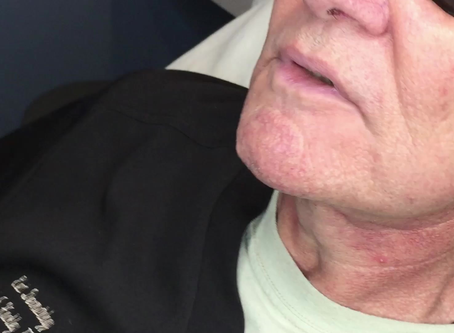 Watch Us Magically Erase Unwanted Blood Vessels With Our LASER.