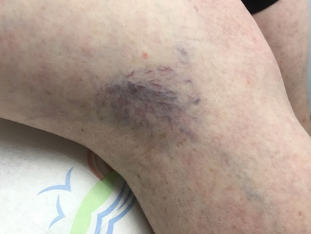 See How We Vanquished These Ugly Veins with Sclerotherapy!