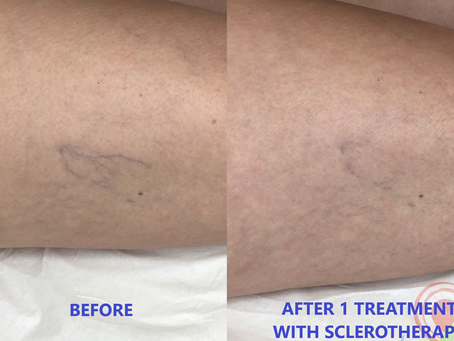 Check Out These Cool Before and After Sclerotherapy Photos.