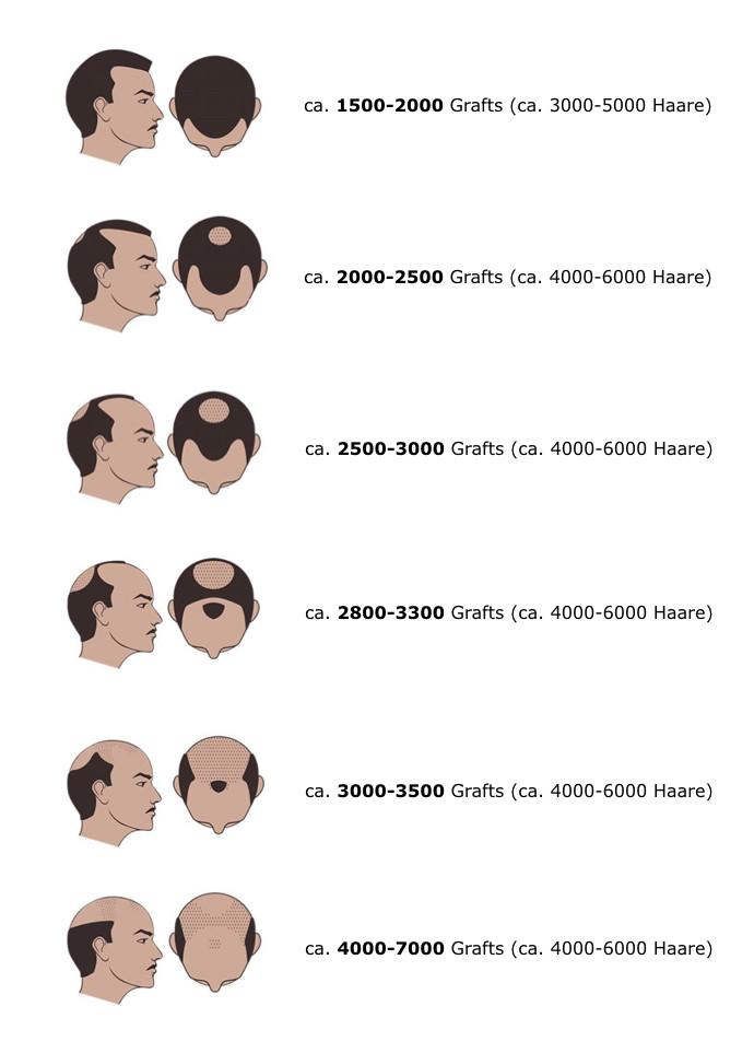 Typenklassen Haarausfall Hairtravel