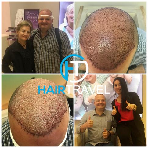 Haartransplantation Forum Hairtravel