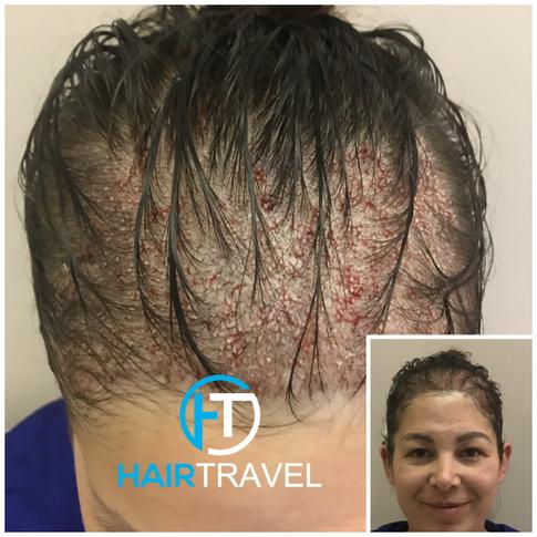Haartransplantation Frau ohne Rasur - Hairtravel