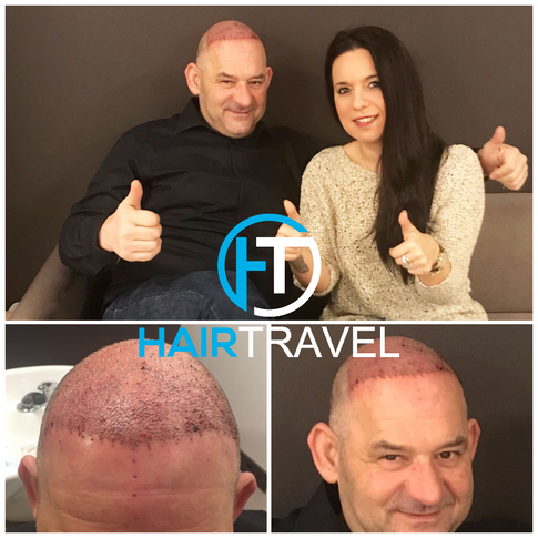 Haartransplantation Vorher Nachher Hairtravel