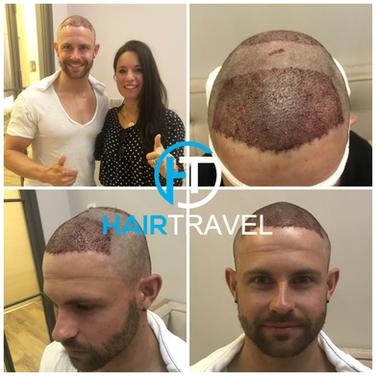 Haartransplantation niedrige Kosten - Hairtravel