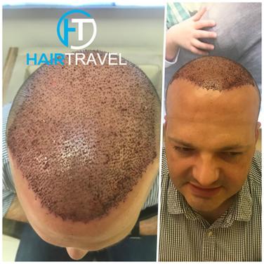 Qualitative Haartransplantation Hairtravel