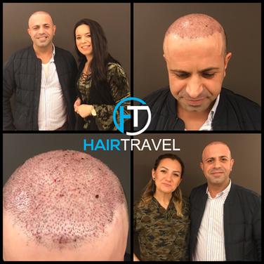 Zufriedener Patient mit Hairtravel