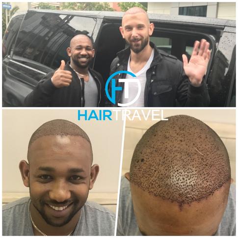 Durch Hairtravel wieder volles Haar