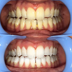 Gleaming white teeth available now! This