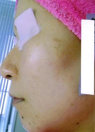 JR基山駅前脱毛サロン リリーグラス 顔側面 シルキーライトによる施術前