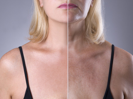 Aging in the Skin - Top 4 Ways to Fight the Signs of Aging!