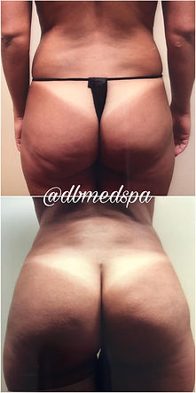 Lipo Fat Transafer - 1.jpg