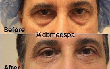 Blepharoplasty -1.jpg