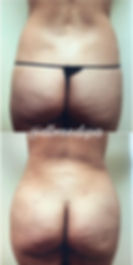 Lipo Fat Transafer - 2.jpg
