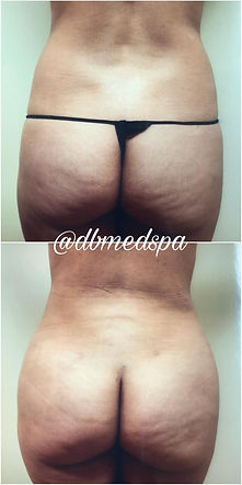 Lipo Fat Transafer - 2.jpg