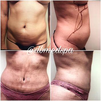 Liposuction - 2.jpg