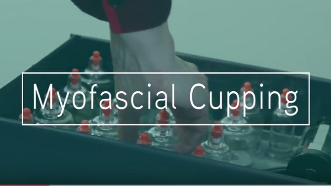 Just what is Myofascial Cupping?