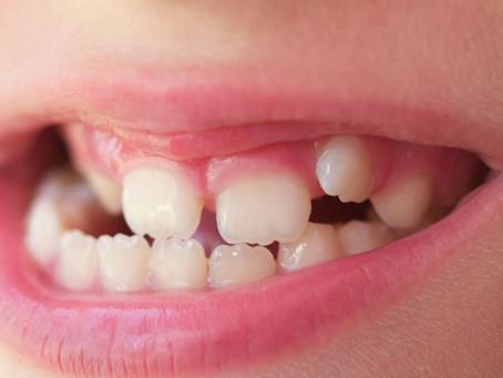 Lets talk teeth grinding (bruxism)