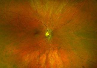 Diabetic Eye Check