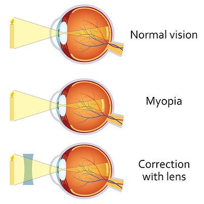 Myopia.jpg