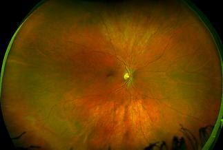 Diabetic Eye Test.png