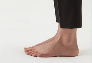 Common Foot Problems 常見腳部問題