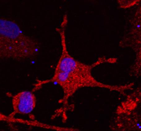 Microglia.tif
