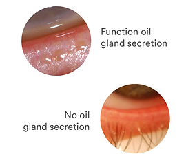 Gland_secretion.png