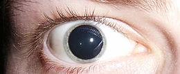 Dilated_pupils.jpg