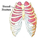 Sternal fracture.jpg