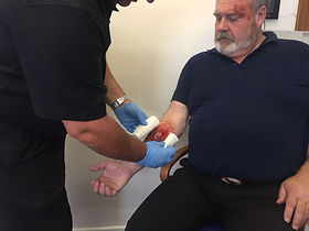 First Aid - open fracture dressing