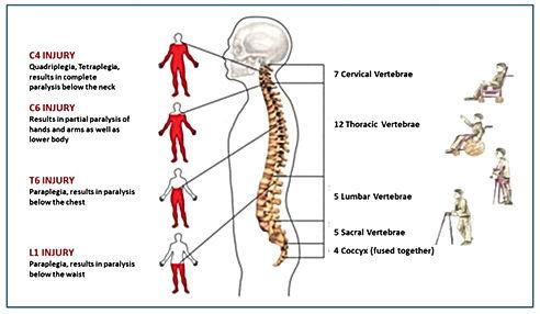 Spinal-cord-injury.jpg