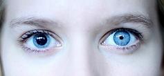 Unequal pupil sizes