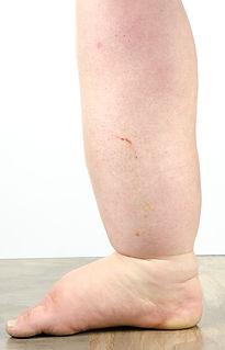 Left leg chronic venous leg ulcer