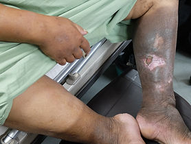 Left leg chronic venous leg ulcer