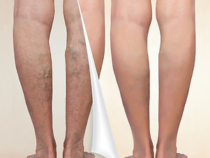 before and after tretment of varicose veins