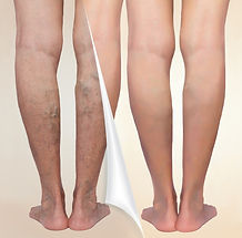 Treatment of varicose before and after.jpg Varicose veins on the senior female legs_edited