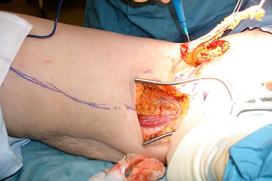 Gracilis Muscle Flap
