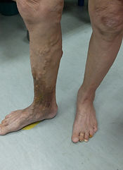 Varicose veins with venous hypertensive changes