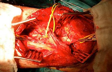 Posterior approach to popliteal artery, popliteal fossa exposure
