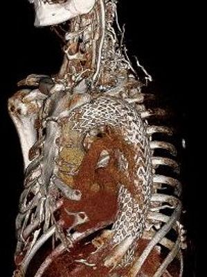 Aoric aneurysm