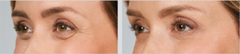 Botox Before After Crows Feet.png
