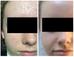 Antes y Después terapia LED