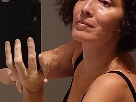 Juciara Rocha - Esclerose Multipla/Multiple Sclerosis