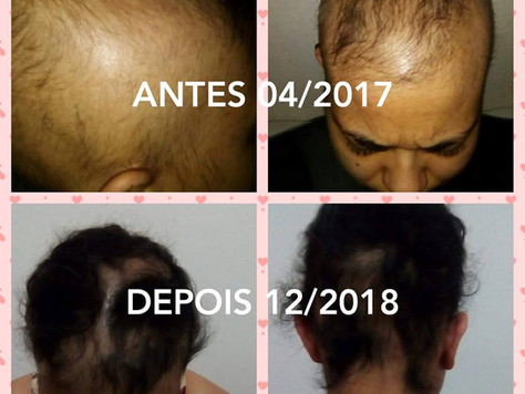 Ana Paula - Alopecia Areata
