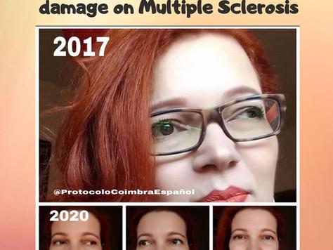 Yara Wanderlust - Multiple Sclerosis/Esclerose Multipla