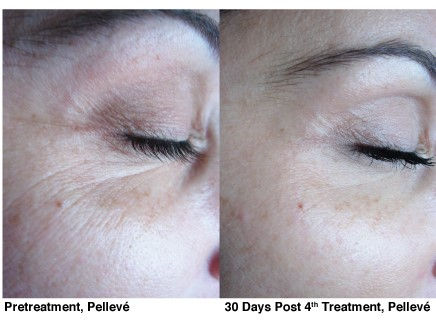 2-Pelleve_Before_and_After_Treatment_Pho