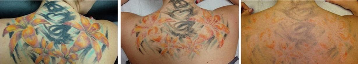 Tattoo-removal-comp-1024x404_edited_edit