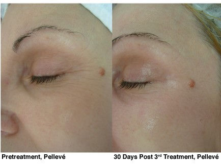 Before-and-after-Pelleve-1.jpg