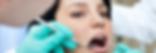 Dolor de muelas endodoncia